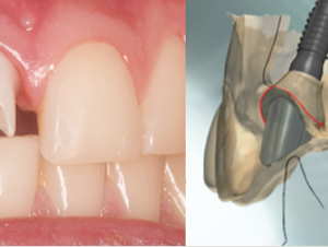 CADCAM Diplomado Odontología