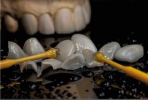 dientes 2