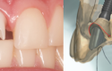 dientecito