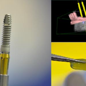 Diplomado Implantología Quirúrgica Odontológica