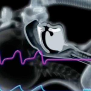 Kinesiología UDD impulsa terapia ventilatoria en trastornos respiratorios del sueño